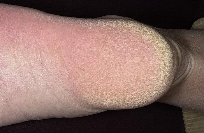 Как работать с грубой коже педикюра