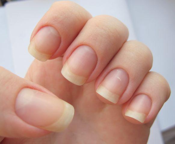 Нормальный тип ногтевой пластины