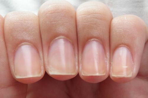 Тонкий тип ногтевой пластины