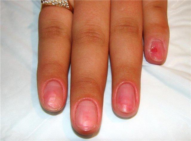 Ослабленные ногти после геля
